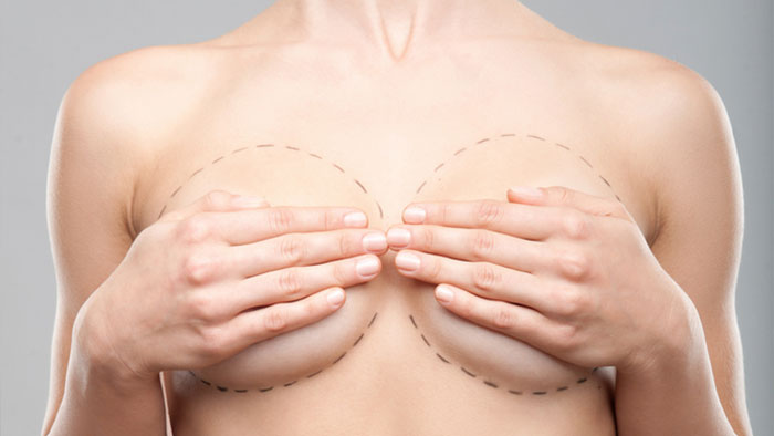 AUGMENTATION MAMMOPLASTY / BREAST ENLARGEMENT